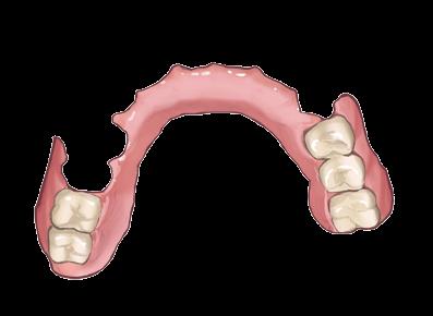 口蓋をくり抜いた部分入れ歯